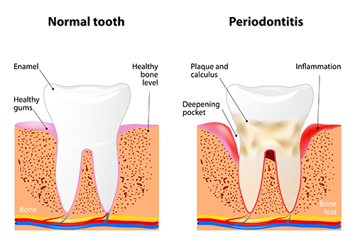 Periodontitis diagram at Pollard Family Dentistry