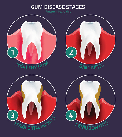 Gum disease treatment at Pollard Family Dentistry