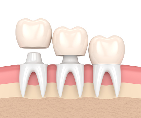 Dental crowns at Pollard Family Dentistry