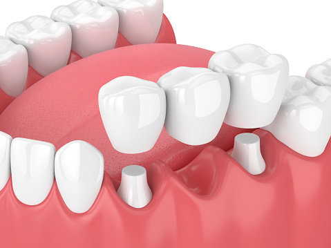 Fixed dental bridges and implants at Pollard Family Dentistry